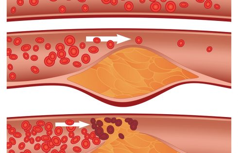 Кои храни предпазват от образуването на тромб